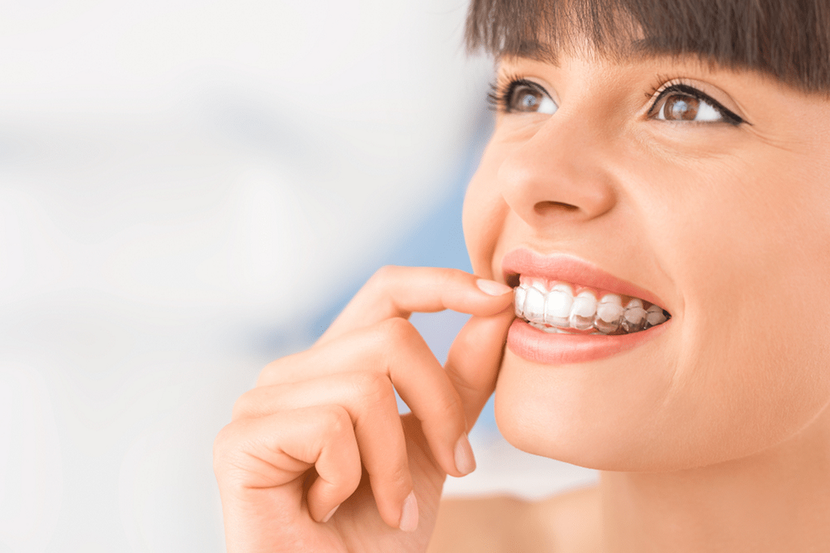 what you need to know before starting invisalign